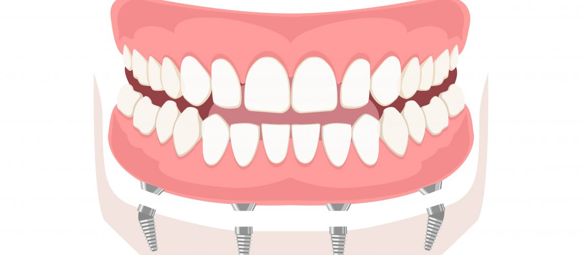 dental implant in San Antonio